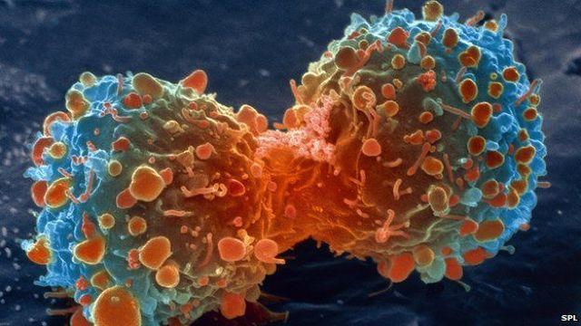 Astăzi este Ziua mondială de luptă împotriva cancerului