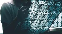 Descoperire uluitoare | Virusul care contribuie la apariţia bolii Alzheimer