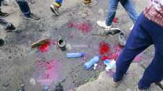 Etiopia | Atac cu grenadă, soldat cu 83 de răniţi, fără decese, la un miting al susţinătorilor premierului Abiy Ahmed