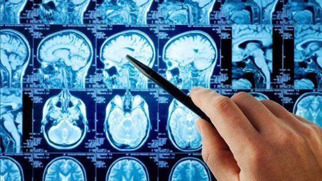 """Un sistem de inteligenţă artificială a """"bătut"""" 15 dintre cei mai buni doctori la identificarea afecţiunilor medicale grave"""