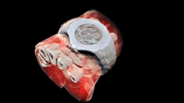 O nouă revoluţie în medicină: a fost inventat aparatul de radiografie color. Acesta foloseşte tehnologie CERN