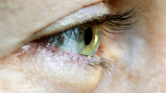 Oftalmologii au avertizat asupra unui nou simptom de infecție cu coronavirus