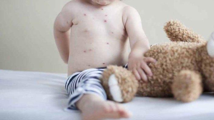 Sunt 72 de copii bolnavi de rujeolă în R.Moldova. Ministerul Sănătății va oferi mai multe detalii la subiect