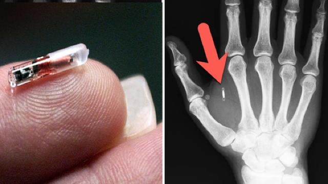 Ţara din Europa unde mii de oameni îşi implantează de bună voie microcipuri sub piele