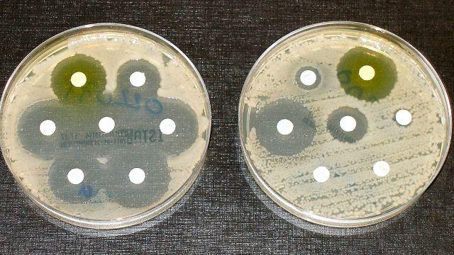 Rezistența la antibiotice devine tot mai periculoasă. În Europa sunt zeci de mii de cazuri de infecții care nu răspund la tratamente