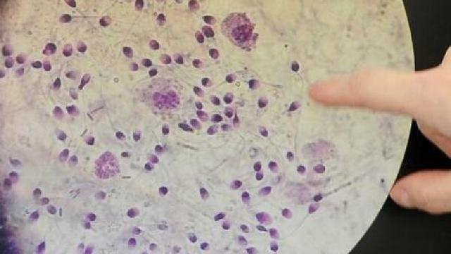 STUDIU   Cercetătorii australieni au identificat o nouă modalitate de a stopa răspândirea cancerului de piele