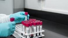 Răspândirea bolii Lyme, ce legătură are cu experimentele la Pentagon și încearcarea de a transforma căpuşele în arme