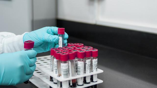 Răspândirea bolii Lyme, ce legătură are cu experimentele la Pentagon și încearcarea de a transforma căpușele în arme
