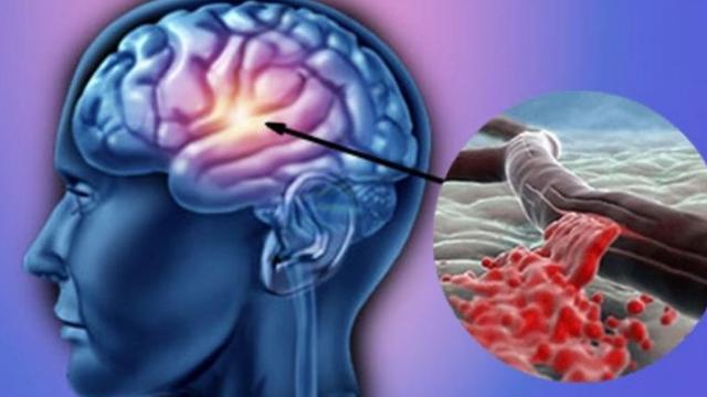 Program național de combatere a accidentului cerebral vascular