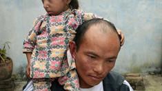 A murit cel mai scund bărbat mobil din lume, la 28 de ani