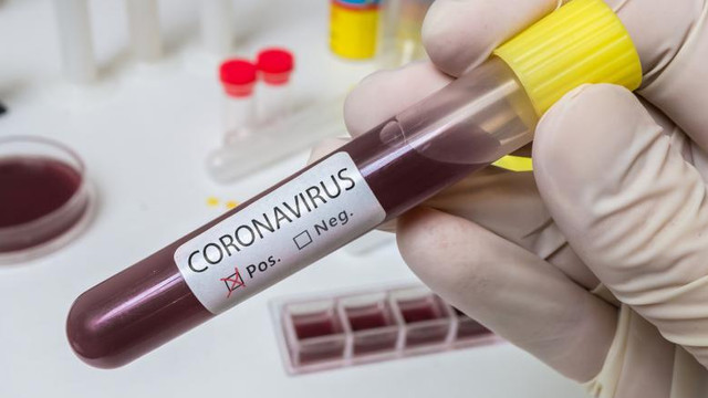 Încă 143 de infectări din cauza COVID-19. Bilanțul deceselor a urcat la 237