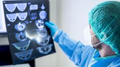 Studiu | Modul ciudat prin care coronavirusul poate afecta creierul uman