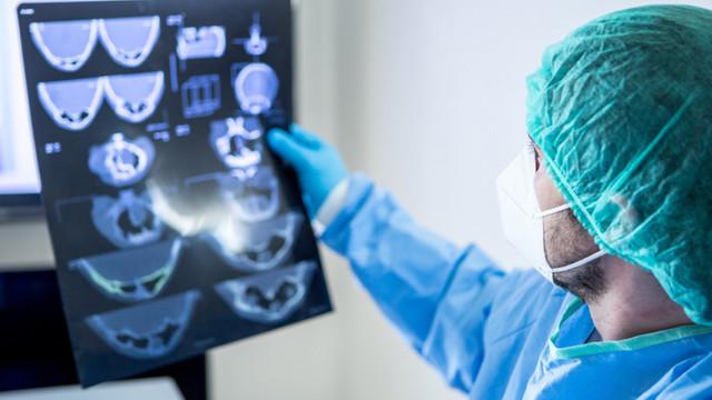 Studiu   Modul ciudat prin care coronavirusul poate afecta creierul uman