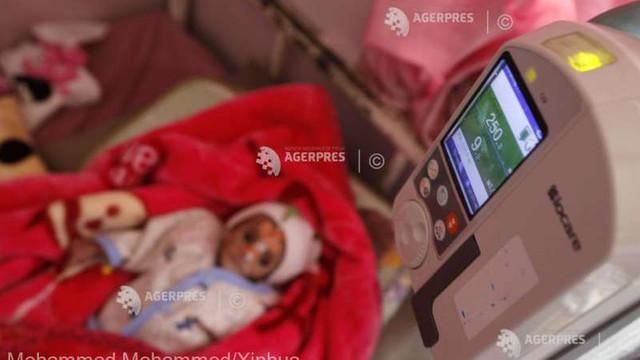 Malnutriția acută în rândul copiilor, la niveluri record în regiuni din Yemen (ONU)