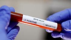 Încă 689 de cazuri noi de COVID-19. Bilanțul deceselor cauzate de virus a ajuns la 5521